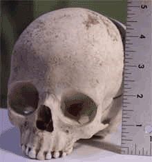 A middle school student brought this allegedly human skull to school