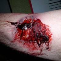 Injury staging