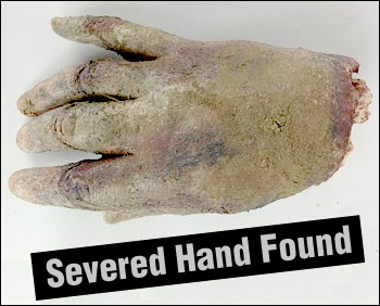 Photo of the alleged severed human hand