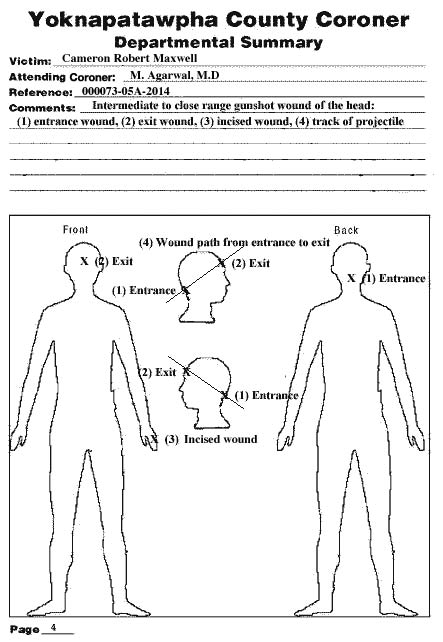 Coroner's Diagram of Cameron Maxwell's injuries