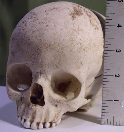 skull the reconstruction was based on
